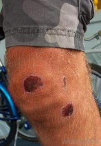 knee-scabs