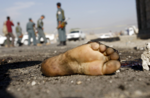 foot of suicide bomber